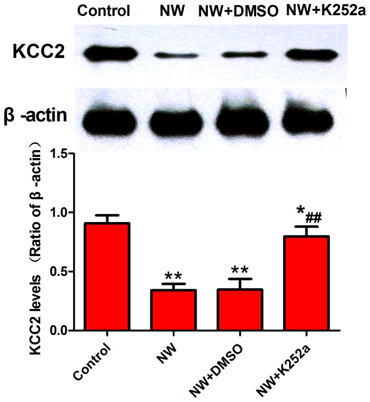 K252a reduced nicotine withdrawal-induced downregulation of KCC2 expression in the spinal cord. A. Western blot of KCC2 protein expression in the spinal cord of the control, NW, NW+DMSO, and NW+K252a groups. Blockade of TrkB with K252a increased the KCC2 protein level in NW rats on day 4. B. The relative expression of KCC2 was normalized to the expression of β-actin (n = 3,*P