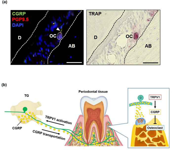 Distribution of <t>CGRP-immunopositive</t> nerve fibers in gingival tissue. ( a ) Immunofluorescent staining for CGRP and <t>PGP9.5,</t> a neuronal maker (left panel) and TRAP staining (right panel) in consecutive tissue sections of gingival tissues. The arrowhead indicates CGRP-containing nerve fibers that are in the vicinity of osteoclasts on the alveolar bone surface. OC, osteoclasts. AB, alveolar bone. D, dentin. Scale bars represent 50 μm. ( b ) Model of the relative roles of TRPV1 and CGRP on bone remodeling in periodontitis. Activation of TRPV1 on sensory neurons innervating gingival tissues induces afferent input to TG, which results in the synthesis of neuropeptides such as CGRP. Anterograde axonal transportation of CGRP to peripheral tissue and subsequent release of CGRP leads to the inhibition of osteoclast differentiation in alveolar bone.