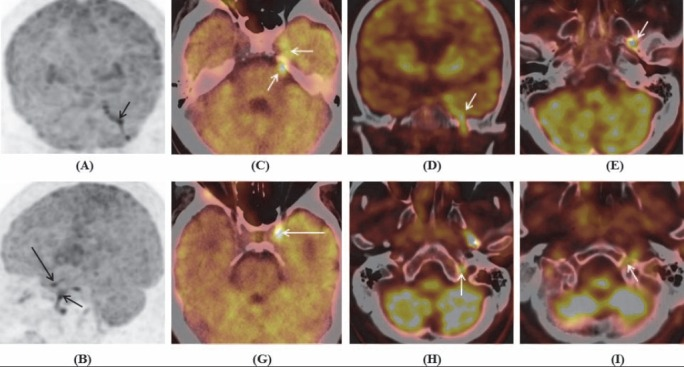 Maximum intensity projection of brain coronal (A) and sagital (B) , and PET/CT images of brain (C-I) showed increased FDG uptake in the left cranial nerves: (A-E) Cranial nerves V and V3; (B, G) complex of cranial nerves III, IV, VI, V1, V2 at cavernous sinus (long arrows); (H) complex of cranial nerves IX, X, XI at jugular foramen; and (I) cranial nerve XII at hypoglossal canal