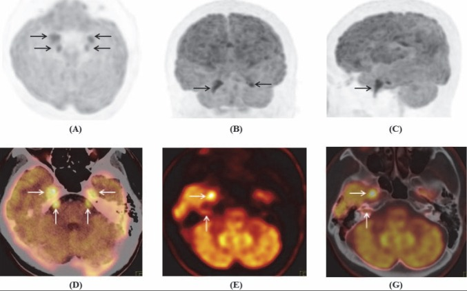 Maximum intensity projection of brain tranaxial (A) coronal (B) and sagital (C) ; PET/CT (D, G) and PET images (E) showed increased FDG uptake in bilateral cranial nerve V, Gasser's ganglions, and complex of the right cranial nerve VII/VIII