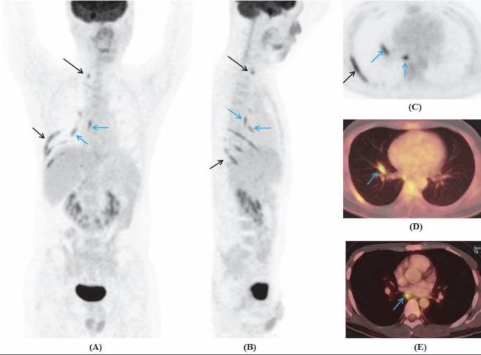 Maximum intensity projection of whole body coronal (A) , sagital (B) , thoracic transaxial (C) , and PET/CT images (D, E) showed increased FDG uptake of the right cervicothoracic ganglion (long arrow), along the 7 th -10 th intercostal nerves, branches of the vagus nerve (blue arrows)