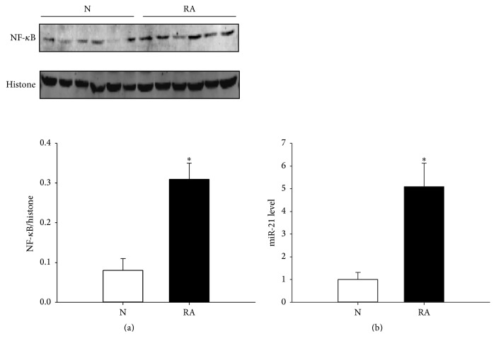 Evaluation of miR-21 and nucleoprotein NF- κ B levels in the RA group and normal control. (a) NF- κ B expression pattern in the RA group and normal control. (b) The miR-21 level was detected by Q-PCR in the RA group and normal control. N indicates the normal control. RA represents the RA group. ∗ P