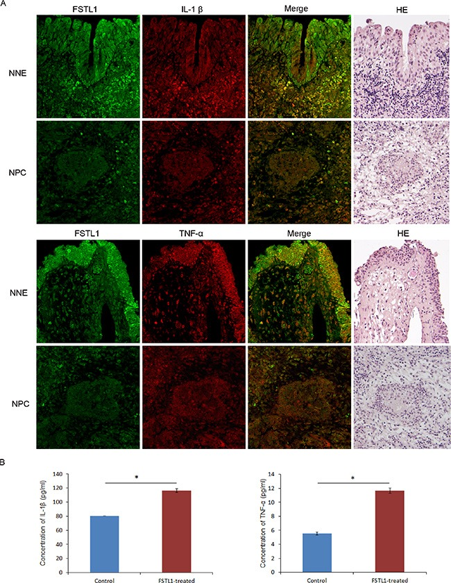 Decreased expression of FSTL1 associated with reduced IL-1β and TNF-α expression in NPC primary tumors ( A ) Human normal nasopharyngeal epithelium tissues (NNE) and NPC tumor tissues were double immunofluorescence stained with FSTL1 (green) and TNF-α (red) or IL-1β (red) antibodies. H E staining demonstrates the histomorphological characteristic of sections. Magnification, 200×. ( B ) ELISA of IL-1β and TNF-α secretion after treatment of human macrophages with soluble FSTL1 (0.75 μg/ml). Mock treatment was a control. Data are mean ± SD ( n = 3). * P