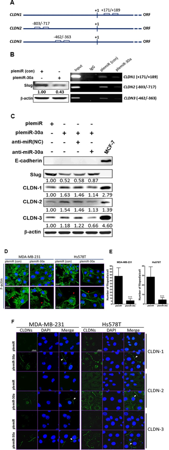 Claudin expression is enhanced by the miR-30a/Slug axis ( A ) Schematic of the E-boxes in the promoter regions of human CLDN1 , CLDN2 , and CLDN3 . The starting point (+1) indicates the transcription initiation in the open reading frame (ORF) of the gene. ( B ) Western blotting (anti-Slug) of MDA-MB-231 breast cancer cell lysates after lentiviral transduction of miR-30a (left panel). PCR analysis of the genes encoding CLDN-1, -2, and -3 after ChIP in the presence of anti-Slug or anti-IgG from control MDA-MB-231/plemiR cells (con) and MDA-MB-231/plemiR-30a cells (right panel). ( C ) Western blotting revealed that Slug and fascin expression in miR-30a–overexpressing cells following miR-30a knockdown (anti-miR-30a) was inversely correlated with claudin expression. NC, negative control. ( D ) Microfilaments in MDA-MB-231 and Hs578T cells expressing plemiR-30a or the control construct plemiR were detected with Alexa Fluor 488–conjugated phalloidin (green) as indicated by red arrows. ( E ) The number of filopodial tips per cell as averaged from 50 cells per condition was calculated. The data represent the mean ± SD from three independent experiments. *** P