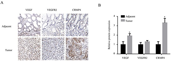 Immunohistochemical analysis of the expression levels of VEGF, VEGFR2 and CRMP4 in tumor sections from gastric cancer patients A. Immunohistochemical detection of VEGF, VEGFR2, and CRMP4 expression levels in tumor and tumor-adjacent tissues collected from gastric cancer patients. B. The relative intensities of VEGF, VEGFR2 and CRMP4 expression in 10 pairs of tumor and tumor-adjacent tissues were evaluated by IPP based on the IHC results. The results analyzed with ANOVA are expressed as means ± SD. The protein expression levels of VEGF and CRMP4 were significantly increased in gastric cancer tissues compared with tumor-adjacent tissues, whereas the VEGFR2 expression levels did not display any significant increase.