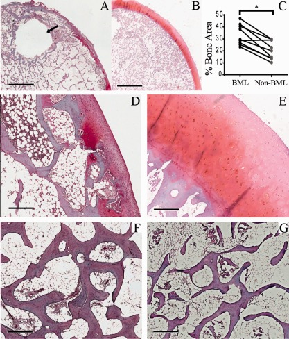 Histologic appearance of bone and cartilage in bone marrow lesion (BML) and non‐BML specimens. A and B, Gross histologic appearance of an excised BML specimen with a subchondral cyst ( arrow ) ( A ) and corresponding non‐BML specimen from the same femoral head ( B ). C, Comparison of trabecular bone area (BML versus non‐BML) as a percentage of the total area (n = 14 pairs). ∗ = P = 0.001. D and E, Excised BML specimen showing some cartilage abnormalities above the articular end plate ( D ) and non‐BML fragment from the same femoral head showing intact cartilage above the articular end plate ( E ). F and G, Photomicrographs of Safranin O–stained paired BML ( F ) and non‐BML ( G ) specimens after decalcification in EDTA, showing a greater trabecular area in the BML region. Bars = 3.8 mm ( A and B ), 500 μ M ( D and E ), and 600 μ M ( F and G ).