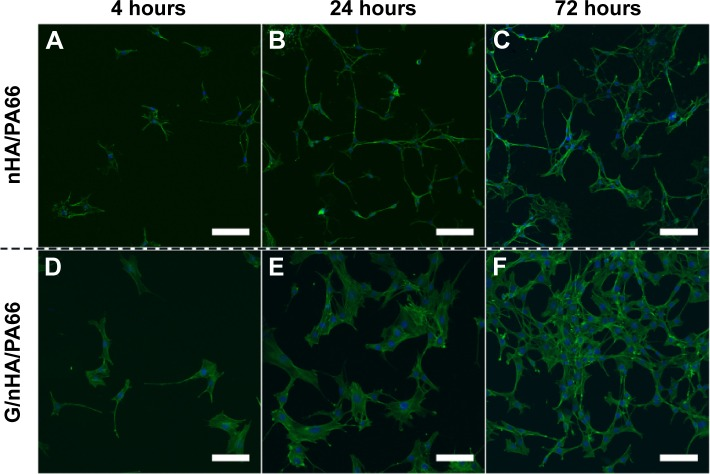 Confocal laser scanning microscope images of C3H10T1/2 cells cultured on nHA/PA66 ( A – C ) and G/nHA/PA66 ( D – F ) discs (scale bar =100 μm, magnification 200×). Abbreviations: G/nHA/PA66, graphene/nanohydroxyapatite/polyamide66; nHA/PA66, nanohydroxyapatite/polyamide66.
