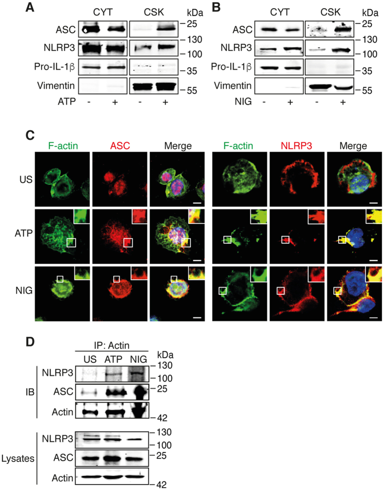 NLRP3 inflammasome interacts with F-actin in ATP- and nigericin-treated THP-1 cells. ( A,B ) Primed THP-1 cells were activated with 5 mM ATP or 1 μM nigericin (NIG) for 6 h. Cytosolic (CYT) and cytoskeletal (CSK) fractions of ( A ) ATP- and ( B ) nigericin-activated cells were subjected to Western blot and analyzed for the presence of ASC, NLRP3, pro-IL-1β and vimentin (control for cytoskeletal fraction). The cropped blots were run under the same experimental conditions; Data are representative of 3 independent experiments. ( C ) Confocal microscopy of ATP- and nigericin-activated THP-1 cells; nuclei are stained in blue. Outlined areas are enlarged in top right corners. Scale bars, 10 μm. Data are representative of 3 independent experiments. ( D ) Primed THP-1 cells were activated with 5 mM ATP or 1 μM nigericin (NIG) for 6 h, immunoprecipitated with anti-actin and subjected to Western blot and analyzed for the presence of ASC, NLRP3 and actin. The cropped blots were run under the same experimental conditions; Data are representative of 2 independent experiments.