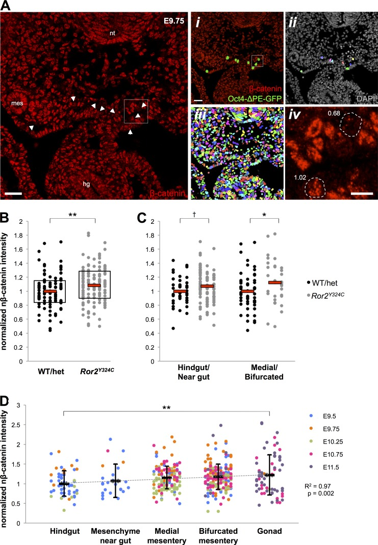 Increased nuclear β-catenin levels in PGCs during their migratory progression and perturbation in Ror2 Y324C PGCs. (A) Nuclear β-catenin (n-βcat, red) immunofluorescence in transverse histological sections of an E9.75 WT embryo treated with Ficin enzyme to disrupt E-cadherin/β-catenin membrane staining. The hindgut (hg), neural tube (nt), and mesonephric duct (mes) are indicated. Bar, 30 µm. (i) PGCs are identified by expression of Oct4-ΔPE-GFP (green; white arrows in A). Bar, 30 µm. (ii) Pseudocoloring (rainbow) indicates individually selected Oct4-ΔPE-GFP + PGCs for quantitative measurement of n-βcat. (iii) Pseudocoloring (rainbow) indicates DAPI-selected nuclei of all cells in the field ( > 600 counted) used to obtain the mean intensity of n-βcat. (iv) Inset from box in A and i to exemplify differences in n-βcat levels in PGCs (dashed white lines) relative to the mean n-βcat levels in all nuclei in the field. Fold differences in staining intensity are indicated. Bar, 10 µm. (B) Quantification of n-βcat in all E9.5 Ror2 Y324C PGCs relative to WT/het littermates shows an increase in accumulation of n-βcat. Each dot represents a single PGC; bars indicate the mean and boxes denote the middle 50% of data points. n = 100–134 cells from two embryos per group; **, P