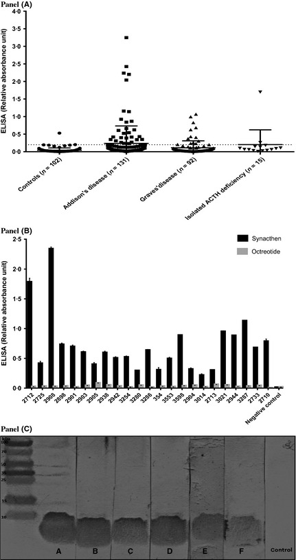 Anti‐tetracosactide binding activity detected by ELISA and immunoblotting. Panel A. Relative quantitation of anti‐tetracosactide binding activity using ELISA with sera from 102 controls, 131 unrelated patients with AAD, 92 patients with Graves' disease and 15 patients with isolated ACTH deficiency. Tetracosactide (ACTH1–24) 1 μg/ml was bound to solid phase ELISA plates (NUNC maxisorp). Results (±SEM) are expressed as arbitrary units of absorbance at 450 n m , having subtracted the background absorbance (mean of three wells without serum). A positive control was run on each occasion to check for interassay variation, which was within 10% on successive plates. ELISA of the 102 control sera (from anonymous hospital attendees with negative autoantibody status) showed absorbance readings of ≤0·2 units in 101 sera, with 1 serum showing an absorbance of 0·6 units. Panel B. All positive samples were run against an identical ELISA protocol, with plates coated with octreotide (somatostatin 1–8) 1 μg/ml. None of the sera gave a positive signal in the assay with octreotide. Panel C. All positive patient sera in the ELISA were tested against the tetracosactide peptide on immunoblotting, and all 41 showed specific 4 kDa binding. Representative positive sera from six patients (A–F) are shown.