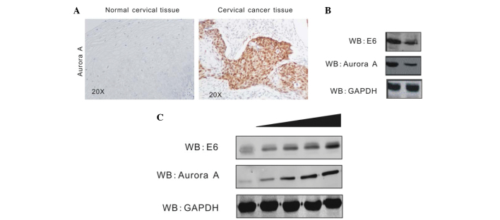 Aurora A expression is upregulated by HPV16 E6. (A) The protein levels of Aurora A were enhanced in cervical cancer tissue. Cervical cancer tissue specimens from 10 patients were analyzed for Aurora A expression by immunohistochemistry. A representative sample of cervical cancer tissue (right panel) and the adjacent normal tissue (left panel) are shown. (B) WB showing expression of Aurora A in the E6-knockdown CaSki cell line and the short hairpin RNA control cell line. The protein level of Aurora A was evidently decreased in the E6-knockdown cells compared with the control cells. (C) HEK293 cells were transfected with the PA3F vector or increasing amounts of PA3F E6. Cells were harvested at 36 h post-transfection, and Aurora A protein levels were assessed by WB. This showed that the Aurora A level was upregulated as the transfection of E6 increased. WB, western blot; GAPDH, glyceraldehyde 3-phosphate dehydrogenase.