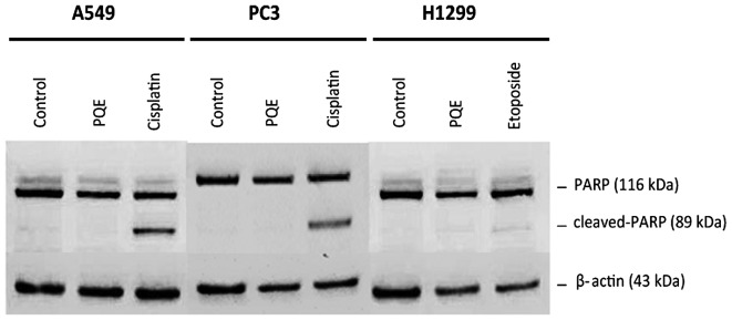 Western blot analysis of poly (adenosine diphosphate-ribose) polymerase in A549, PC3 and H1299 cell lines. β-actin was used as loading control. The treatment was conducted for 24 h. Vertical and horizontal lanes indicate separate blots. PQE, Pelargonium quercetorum extract; PARP, poly (adenosine diphosphate-ribose) polymerase.