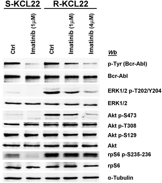 Effect of imatinib on MEK/ERK1/2 and PI3K/Akt/mTOR pathways in KCL22 cells S- and R-KCL22 cells, treated with DMSO (Ctrl) or with the indicated amounts of imatinib for 4 h, were lysed and lysate proteins were analysed by western blot with the indicated antibodies. Figure is representative of four separate experiments.