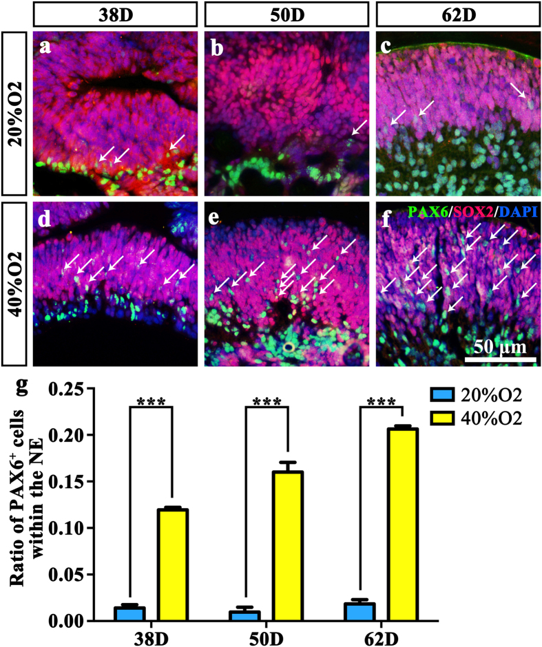 High oxygen concentration facilitates neural retinal development similar to the status in vivo . ( a – f ) SOX2 and PAX6 double-staining of NE in ( a ) 38D 20% O 2 ; ( b ) 50D 20% O 2 ; ( c ) 62D 20% O 2 ; ( d ) 32D 40% O 2 ; ( e ) 52D 20% O 2 ; ( f ) 62D 40% O 2 . White arrows point at the PAX6-immunoreactive cells within the NE. ( g ) Ratio of PAX6-immunoreactive cells within the NE in 6 groups. The number of PAX6 positive cells within the NE in the high oxygen groups was much higher compared to the normal oxygen concentration groups. NE: Neuroectodermal epithelium.