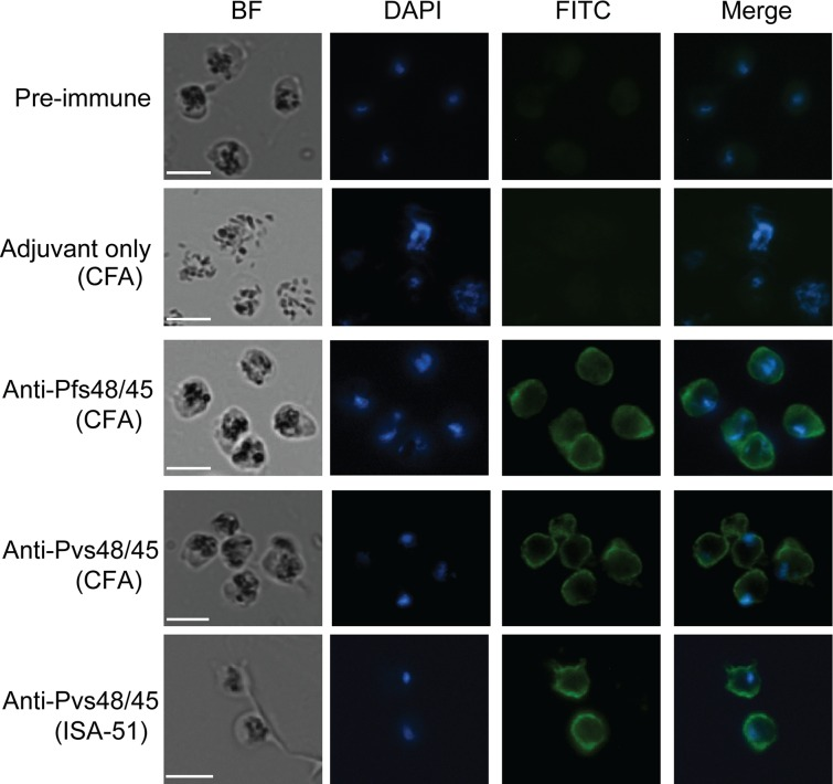 Recognition of Pfs48/45 in fixed P . falciparum parasites in indirect immunofluorescence assays. The representative results for fixed parasites incubated with pooled pre-immune sera, pooled sera from CFA adjuvant alone immunized mice, a representative anti-Pfs48/45 serum, a representative ELISA and WB positive anti-Pvs48/45 serum (CFA group), and a representative ELISA and WB positive anti-Pvs48/45 (Montanide ISA-51 group) at a dilution of 1:100. BF, bright field; DAPI, the nuclei stained by NucBlue reagent; FITC, antibody reactivity to the parasite visualized with FITC-conjugated anti-mouse <t>IgG</t> antibody, and Merge of DAPI and FITC images. All images were visualized and captured at 1000X magnification. Scale bar (white line), 5μm.