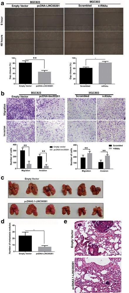 Effects of LINC00261 on gastric cancer cell migration and invasion in vitro and in vivo. BGC823 cells were transfected with pcDNA3.1-LINC00261, and MGC803 cells were transfected with si-LINC00261. a Wound healing assays were used to investigate the migratory ability of gastric cancer cells. Experiments were performed in triplicate. Bars : SD; ** P