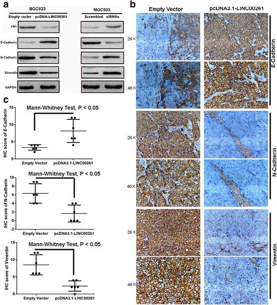 LINC00261 overexpression suppresses GC cell invasion and metastasis by affecting the EMT. a Western blot analysis of E-cadherin, N-cadherin, FN1, and Vimentin expression in GC cells treated with pcDNA3.1-LINC00261 and siRNAs-LINC00261. b Representative E-cadherin, N-cadherin and Vimentin protein levels in xenograft tumors evaluated by immunohistochemistry. c Correlation analysis performed between E-cadherin, N-cadherin, and Vimentin expression levels and the different xenograft tumor groups