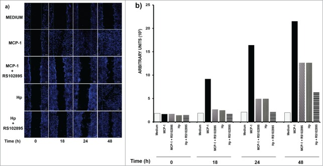 Monocyte <t>chemoattractant</t> <t>protein</t> 1 (MCP1) and haptoglobin (Hp) are affected in their capacity to migrate by CCR2 antagonist (RS1028959 exposition). Wound-healing assays were performed on SKOV-3 cells for 0, 12, 24 and 48 h at the indicated doses of Hp (250 μg) and monocyte chemoattractant protein 1 (MCP1, 250 ng). In addition, the effect of pretreatment with the chemokine (C-C motif) receptor 2 (CCR2) synthetic antagonist RS102895 (5 μM) on the capacity of SKOV-3 cells to migrate toward MCP1 (250 ng/ml) and Hp (0.250 mg/ml) is shown. As a negative control, bovine serum albumin (BSA) (1 mg/ml) was used. Chemotaxis was measured by confocal microscopy; nuclei (blue) were stained with DAPI (1:50). ( B ) Quantitative analysis of migration by the software Zen 2011 (Blue edition, Carl Zeiss) considering an average area of 9 × 10 5 μm 2 . This program determines the mean fluorescence intensity of each condition, which is plotted as a histogram. The results correspond to the average of 3 independent experiments. Bar scale = 100 μm.