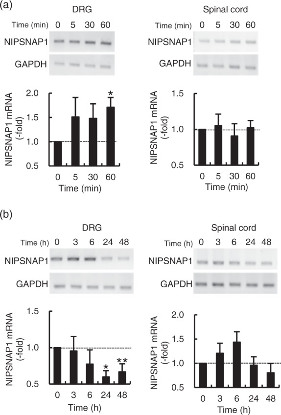 Analysis of NIPSNAP1 mRNA levels following the induction of inflammation. Levels of NIPSNAP1 mRNA in DRG and spinal cord induced by injection into the dorsal surface of hind paw of 2% formalin (a) or 1% carrageenan (n). The upper and lower panels show representative results of RT-PCR and real-time PCR analysis, respectively. Data are expressed as the mean ± SEM ( n = 3). **p