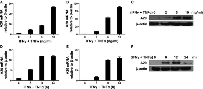 Inflammatory cytokines induce A20 expression in MSC s. MSC s ( A ) and C3H/10T1/2 ( B and C ) were treated with 0, 2, 5 and 10 ng/ml IFN ‐γ and TNF ‐α for 24 hrs. A20 mRNA and protein levels were examined by qRT ‐ PCR and Western blot analysis. MSC s ( D ) and C3H/10T1/2 ( E and F ) were treated with 5 ng/ml IFN ‐γ and TNF ‐α for 0, 6, 12 and 24 hrs, and mRNA and protein expression levels were determined by qRT ‐ PCR and Western blot analysis, respectively.