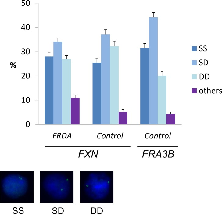 Replication timing of mutant and normal FXN alleles. Percentages are calculated from pooled data obtained with FRDA (GM15850 and GM16227) and control GM15851 cells. Per each group, at least 550 nuclei were analyzed from at least two independent replicated experiments (Raw data in S1 Table ). SS = nuclei with two single FISH spots (non-replicated alleles); SD = nuclei with one single and one duplicated FISH signal (one allele has been replicated); DD = nuclei with two duplicated FISH signals (both alleles have been replicated); others = nuclei with one or none FISH signals. Error bars indicate standard errors of proportions. The probe used in these experiments is BAC RP11-265B8. For comparison, the replication timing of a late replication sequence ( FRA3B , probe RP11-468L11) in normal GM15851 cells is shown. Examples of FISH replication patterns are shown in the bottom of the Figure.