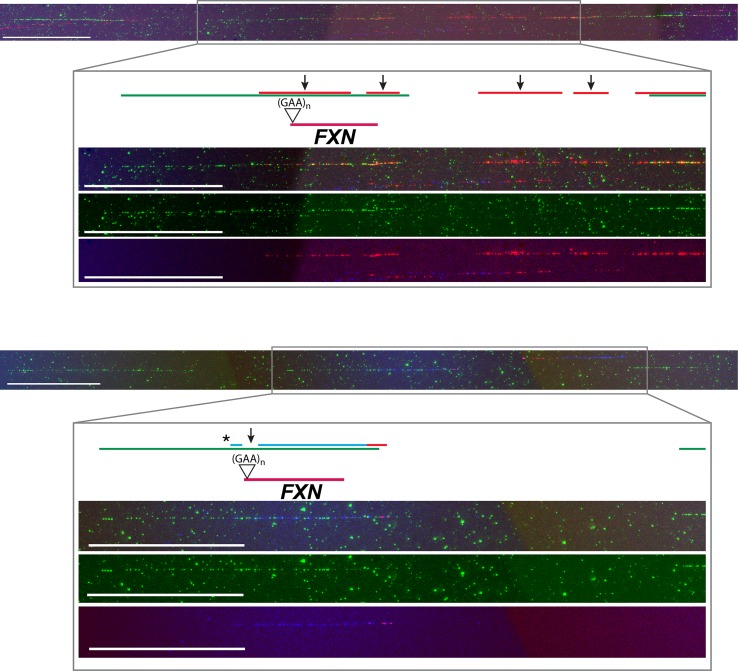 Two representative images of the FXN locus as detected by FISH and molecular combing. Three probes (green) are used to detect the 850 kb region harboring FXN (red). The position of the GAA-repeat expansion in the mutated alleles is also displayed. Replication tracks are visualized in blue (IdU) and red (CldU), arrows indicate origin positions, the asterisk corresponds to a paused/arrested fork. The two images refer to S8 Fig , molecules 41 and 5 respectively. The region identified by BAC RP11-265B8, where FXN maps, is enlarged to allow a better visualization of origin firing and a sharp interpretation of the replication signals. For each enlargement, the first frame corresponds to the merged image, the second frame shows the probes in green fluorescence, the third one displays the blue and red tracks coinciding with the replicative patterns. Calibration bar = 100 kb.