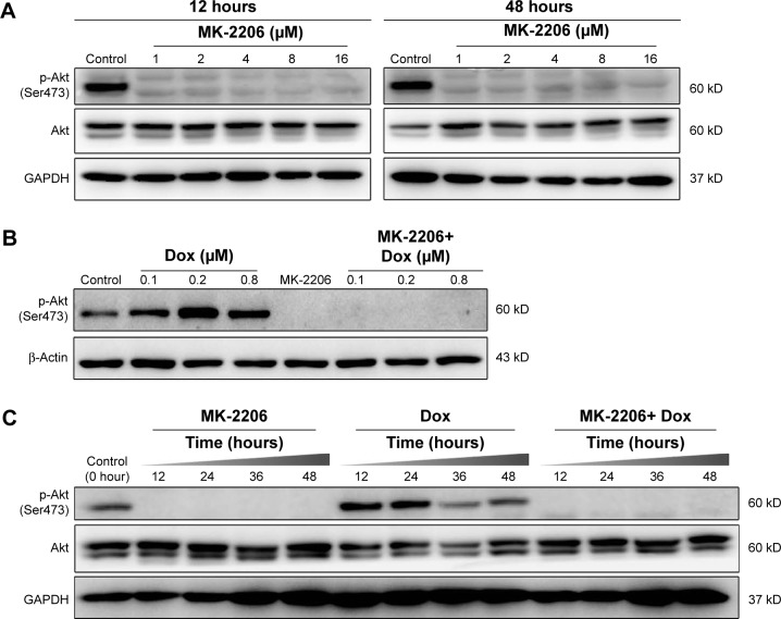 Effect of Akt inhibitor MK-2206 on Akt phosphorylation (p-Akt) in gastric cancer cells. Notes: ( A ) Dose-dependent response. SGC-7901cells were treated with MK-2206 at the indicated concentration for 12 and 48 hours, respectively. Cell lysates were subjected to Western blotting using anti-phospho-Akt (specific to Ser473, p-Akt) and anti-Akt1/2. GAPDH was used as loading control. ( B ) MK-2206 inhibited the activation of Akt Ser473 induced by doxorubicin. Cells were treated with doxorubicin (0.1, 0.2, 0.8 μM) in the presence of MK-2206 (1 μM) for 24 hours. Cell lysates were prepared, and p-Akt expression level was determined by Western blotting. ( C ) Time-dependent effect of MK-2206 and doxorubicin on p-Akt in SGC-7901 cells. Cells were treated with 1 μM MK-2206 alone, 0.2 μM doxorubicin alone, or both agents for 12, 24, 36, and 48 hours. Expression levels of p-Akt and total Akt were determined by Western blotting. Abbreviations: Dox, doxorubicin; GAPDH, glyceraldehyde-3-phosphate dehydrogenase.