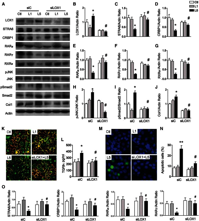 L5 suppresses STRA6 cascades and increases cell injury in HK-2 cells. A: Western blots show LOX1, STRA6, CRBP1, RARα, RARγ, RXRα, pJNK, pSmad2, and collagen 1 (Col1) in control siRNA (siC)-transfected or LOX1 siRNA (siLOX1)-transfected HK-2 cells (n = 3) after PBS (Ctl), L1, or L5 treatment for 24 h. In L5-treated HK-2 cells, quantitative analysis showed that LOX1 (B) protein levels significantly increased; STRA6 (C), CRBP1 (D), RARα (E), RARγ (F), and RXRα (G) protein levels decreased; pJNK/JNK (H) and pSmad2/Smad2 (I) ratios increased; and collagen 1 (J) increased. These changes were reversed in LOX1 siRNA-transfected L5-injected HK-2 cells, as compared with L5-injected siC mice. K: Representative images (400×) show immunoreactive staining for STRA6 (red fluorescence) emerged to cell membrane staining (green fluorescence) on chamber slides of Ctl-, L1-, and L5-treated cells, and L5-treated LOX1 siRNA-transfected cells. L: ELISA showed an increase of TGFβ 1 concentration in L5-treated siC cells, but not in L5-treated siLOX1 cells. M: Cytochemistry images show the nucleus of apoptotic cells (green fluorescence) emerged to staining of nucleus (blue fluorescence) in Ctl-, L1-, and L5-treated cells, and in L5-treated LOX1 siRNA-transfected cells. N: Number of apoptotic cells significantly increased in L5-treated siC cells, but not in L5-treated siLOX1 cells. O: Real-time PCR analysis showed that LOX1 siRNA significantly increased mRNA levels of STRA6, CRBP1, RARα, and RXRα in L5-treated HK-2 cells. All results are represented as mean ± SE. * P