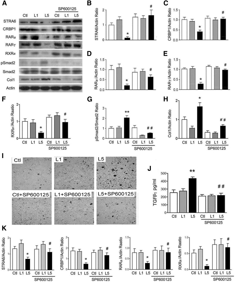 JNK inhibitor represses L5 effect on STRA6 cascades and renal injury. A: Western blots show STRA6, CRBP1, RARα, RARγ, RXRα, pSmad2, and collagen 1 (Col1) of Ctl, L1-, or L5-treated RETCs with or without SP600125 treatment for 24 h (n = 3). Quantitative analysis showed that L5 treatment decreased STRA6 (B), CRBP1 (C), RARα (D), RARγ (E), and RXRα (F), but increased the pSmad2/Smad2 ratio (G) and collagen 1 (H). All of these effects of L5 were reversed in SP600125-treated RETCs under L5-stimulation. I: Representative optical microscopy images show nuclei of apoptotic cells (thick dark stain) in Ctl, L1-treated, and L5-treated cells with or without SP600125 treatment. SP600125 decreased the nuclei of apoptotic cells in RETCs under L5-stimulation. J: ELISA showed that SP600125 treatment attenuated the increase of TGFβ 1 concentration in the culture medium of L5-treated RETCs. K: Real-time PCR analysis revealed that SP600125 significantly recovered the decreased mRNA levels of STRA6, CRBP1, RARα, and RXRα in L5-treated RETCs. All results are represented as mean ± SE. * P