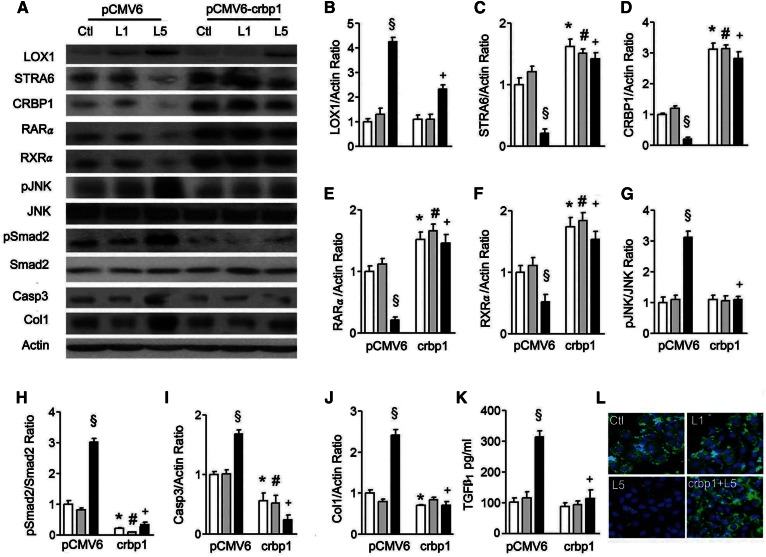 The crbp1 gene transfection reverses L5 effects on STRA6 cascades and renal cell injury. A: Western blots show LOX1, STRA6, CRBP1, RARα, RXRα, pJNK, pSmad2, and collagen 1 (Col1) expression in cell lysate of pCMV6-transfected and pCMV6-crbp1-transfected HK-2 cells under PBS (Ctl), L1, or L5 treatment for 24 h (n = 3). Quantitative analysis showed a significant difference for the increase of LOX1/actin (B); the decrease of STRA6/actin (C), CRBP1/actin (D), RARα/actin (E), and RXRα/actin (F); the increase of pJNK/JNK (G), pSmad2/Smad2 (H), caspase 3/actin (I), and collagen 1/actin (J) under L5 stimulation in pCMV6-transfected cells. These changes caused by L5 treatment were reversed in pCMV6-crbp1-transfected cells. K: ELISA showed that pCMV6-crbp1-transfection reversed the elevation of TGFβ 1 concentration under L5 treatment in the culture medium of HK-2 cells. L: Cytochemistry images show immunoreactive staining of STRA6 (green fluorescence) was recovered by pCMV6-crbp1-transfection in L5-treated HK-2 cells (crbp1+L5). All results are represented as mean ± SE. § P