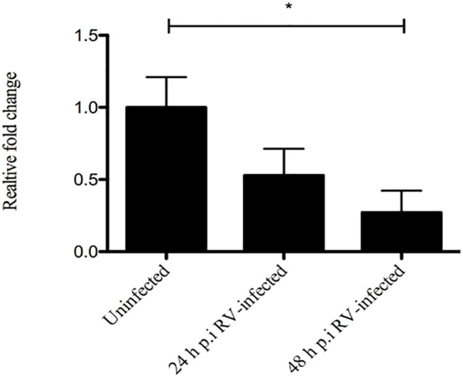 Rotavirus down-regulates SERT mRNA in ileum of infected mice. The small intestines of infected and uninfected mice were collected 24 and 48 h p.i and SERT and GAPDH mRNA levels quantified at each time-point by SYBR Green based real-time PCR. A significant down-regulation of SERT mRNA was found at 48 h p.i in ileum of infected compared to uninfected mice. Relative fold- change was set in relation to uninfected pups. Statistical analyses were done using Kruskal-Wallis and Bonferroni's multiple comparison test. Data is presented as means + SEM. * = p