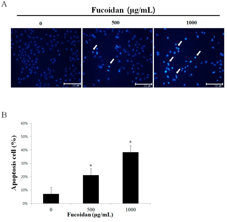 Effect of fucoidan on the chromatin condensation in DU-145 cells. ( A ) DU-145 cells were treated with 0, 500, 1000 μg/mL fucoidan or vehicle in RPMI-1640 medium containing 5% FBS for 24 h, and cell were stained with DAPI. The arrows indicate chromatin condensation in the cancer cell. ( B ) DU-145 cells were treated with fucoidan (0, 500, 1000 μg/mL) for 24 h. Apoptosis cells were counted under a light microscope and expressed as the average of five fields. Each bar represents the mean ± SD calculated from independent experiments. Significance was determined by Dunnett's t -test with * p