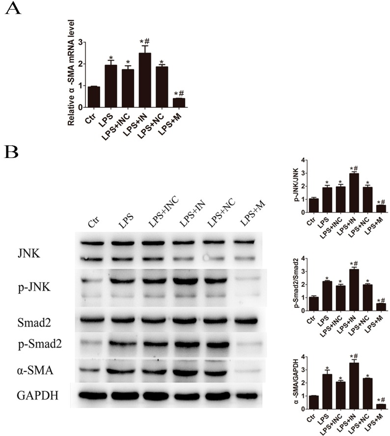 miR-146a-5p mimic attenuated LPS induced JNK activation and α-SMA expression. After pretreatment in the absence or presence of miR-146a-5p for 24 h, LX2 cells were stimulated with 500 ng/mL of LPS for 24 h: ( A ) Overexpression of miR-146a-5p significantly inhibited α-SMA mRNA expression; and ( B ) Western bolt showed that miR-146a-5p mimic significantly decreased LPS induced p-JNK, p-Smad2 and α-SMA expression while miR-146a-5p inhibitor showed the contrary changes. * p