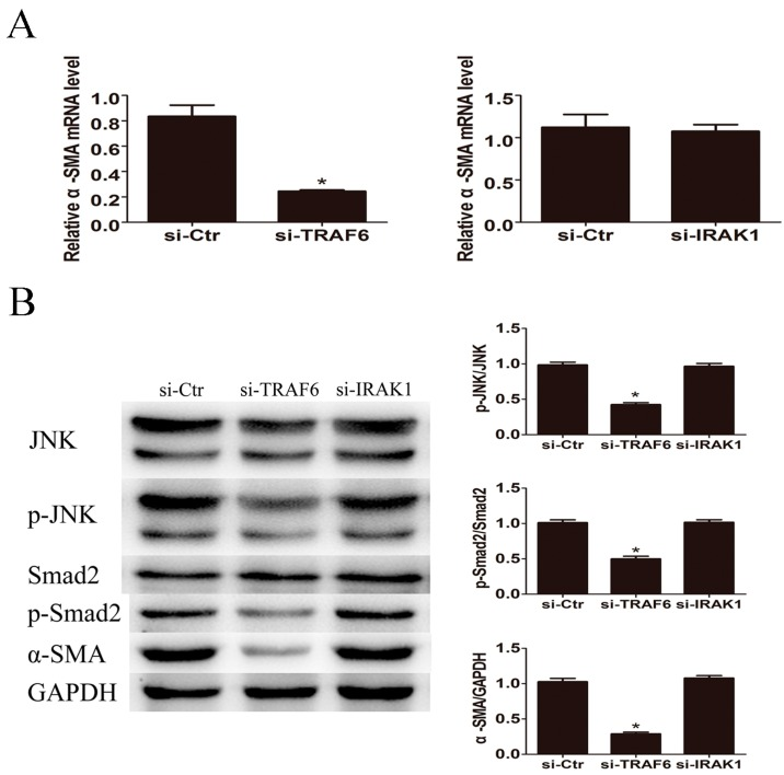 TRAF6 siRNA reduced LPS induced JNK activation and α-SMA expression. After incubation with TRAF6 siRNA or IRAK1 siRNA for 48 h, LX2 cells were treated with 500 ng/mL of LPS for 24 h. ( A ) TRAF6 siRNA but not IRAK1 siRNA decreased the mRNA expression level of α-SMA; ( B ) TRAF6 siRNA but not IRAK1 siRNA attenuated the activation of JNK and Smad2 and decreased the protein expression of α-SMA. * p