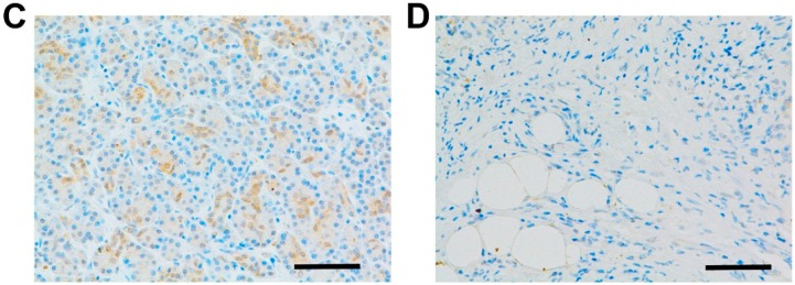 Immunohistochemical analysis of EGFR (epidermal growth factor receptor) in PDAC (pancreatic duct adenocarcinoma)tissues. In PDAC tissues, immunoreactivity for EGFR was observed on the surface and in the cytoplasm of cancer cells ( A – C ), with no immunoreactivity in the surrounding stroma ( D ). The immunoreactivity was different in respective cases: ( A ) strong; ( B ) moderate; ( C ) weak expression; and ( D ) absent (scale bars, 200 μm).