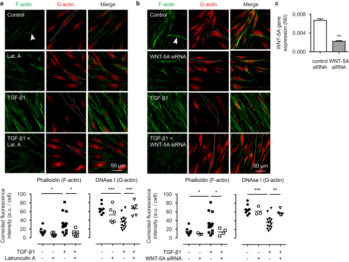 WNT-5A mediates TGF-β1 induced actin polymerization. Representative immunofluorescent images of a Phalloidin (F-actin, green) and DNAse I (G-actin, red) staining of airway smooth muscle cells exposed to TGF-β1 (2 ng/mL) for 48 hours in the presence or absence of ( a ) latrunculin A (0.1 μM), or ( b ) WNT-5A-specific siRNA. White arrowhead points to filamentous actin. Dashed line represents a single cell boundary. Horizontal line represents the mean. ( c ) mRNA of airway smooth muscle cells pre-incubated with WNT-5A siRNA or control siRNA (30 pmol) for 36 hours was isolated and subjected to RT-qPCR. *vs control siRNA. Data represents three independent experiments. Data is expressed as the mean ± SEM.