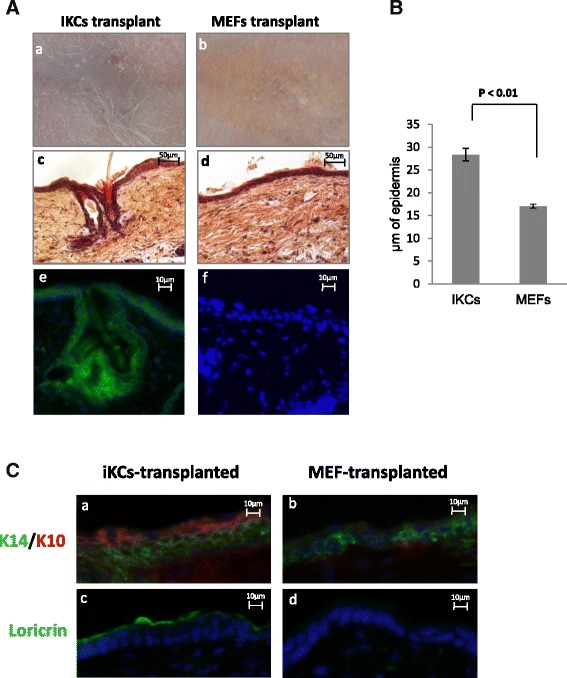 Induced keratinocytes ( iKCs ) can regenerate normal skin in vivo . ( a ) iKCs or mouse embryonic fibroblasts ( MEFs ) were transplanted in the back skin of nude mice. Nude mice transplanted with iKCs showed de novo hair formation at the graft site after 6 weeks ( a ), whereas hair development was not observed on mice transplanted with MEFs ( b ). All layers of the epidermis, including de novo hair follicles and sebaceous glands, are apparent in H E stained skin sections from iKC-transplanted mice ( c ) but not MEF-grafted skin ( d ). EYFP staining ( green ) marks iKCs and de novo iKC-generated tissue ( e ), which is not present in MEF-transplanted epidermis ( f ). Scale bars = 50 μm ( c and d ) and 10 μm ( e and f ). ( b ) Epidermal thickness comparing iKC-derived vs MEF-transplanted skin. Blindfolded comparison was performed by measuring epidermal thickness in 25 images (two measurements/image) captured from five independent tissue sections (five images/section) from iKC-derived or MEF-derived skin. Note a nearly twofold increase in iKC-generated epidermis. Error bars represent standard error amongst 50 independent measurements for each sample. ( c ) Immunofluorescence staining for K14 (a marker of undifferentiated keratinocytes), K10 (an intermediate differentiation marker), and loricrin (a terminal differentiation marker). Tissue sections were stained for different keratinocyte stratification/differentiation markers in iKC- or MEF-transplanted tissue sections. IKC-transplanted epidermis expressed both K14 ( green ) and K10 ( red ), whereas MEF-transplanted tissue only displayed some K14-positive cells, and no K10 staining ( b ). Loricrin ( red ) was expressed on the outer epidermal layer of the iKC-derived skin ( c ) and indicates the presence of iKC-derived terminally differentiated cells. In contrast, MEF-derived skin was negative for loricrin expression ( d ). Scale bars = 10 μm