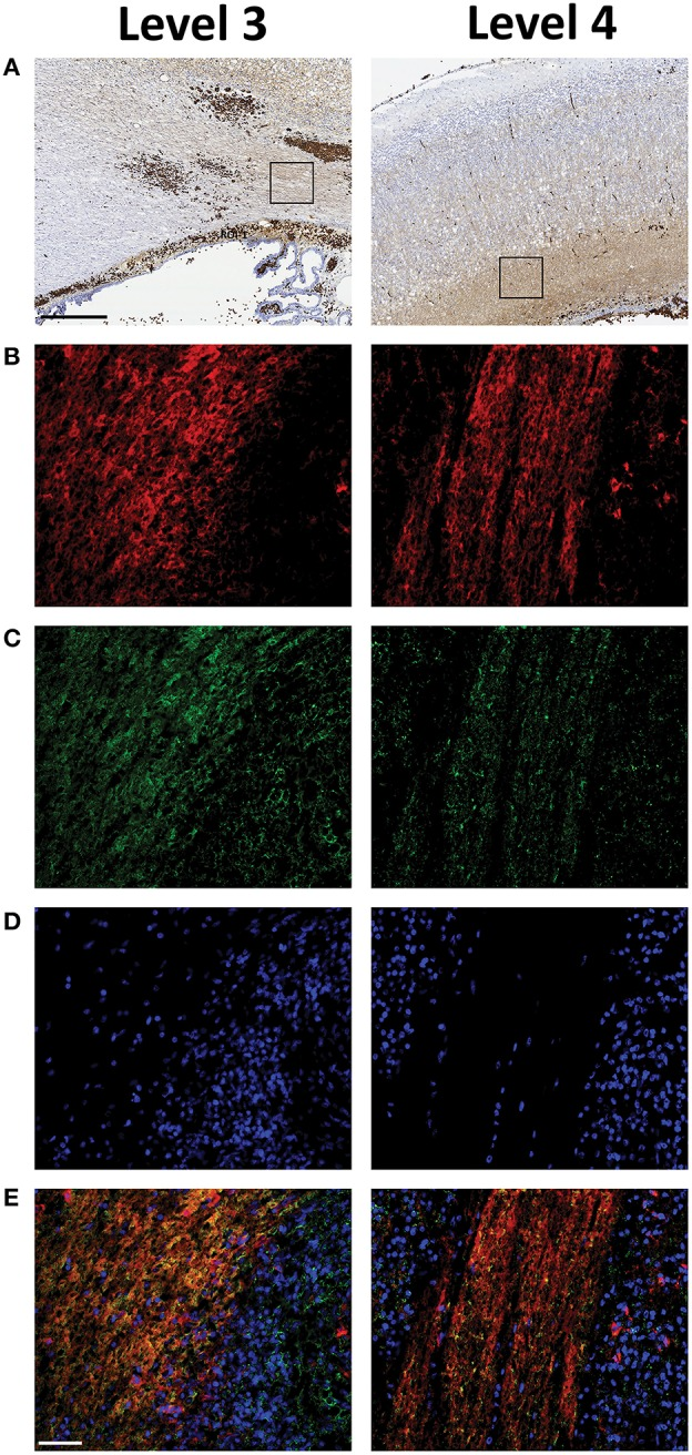 Extracellular Hb is present within plastic areas of the periventricular white matter following preterm rabbit pup IVH . The relation between Hb  (B) , displayed in red and PSA-NCAM  (C) , displayed in green, a marker of areas with high plasticity, characterized by double labeling of selected regions of interests (ROI) of peroxidase activity corresponding areas  (A) , recorded in parallel sections. Rabbit pups with IVH or sham controls were euthanized at 72 h of age followed by saline and freshly prepared 4% PFA perfusion. Afterwards the brains were dissected from the skulls and immersed in 4% PFA. Brains were prepared and sections at the levels of rostral midbrain (Level 3) and caudal midbrain (Level 4), were immunolabeled for Hb and PSA-NCAM as described in the Materials and Methods section. DAPI labeled cell nuclei, displayed in blue, are shown in  (D)  and the merge of Hb, PSA-NCAM and DAPI is displayed in  (E) . Fluorescence microscope analyses were performed on a wide-field Olympus microscope (IX73) and slide scanning were performed on a Hamamatsu NanoZoomer 2.0-HT Digital slide scanner: C10730. Scanning was performed with a 40 × magnification lens. Images used for illustrations, from ROI's, were grabbed with the viewer software NDP.view2 Viewing software. Scale bar of slide scan images indicate 500 μm and of ROI images indicate 25 μm.