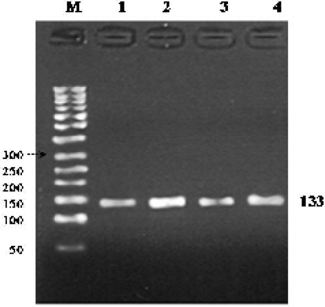 PCR product of exon 24. A fragment of exon 24 (133 bp) was successfully amplified through PCR reaction. 50 bp DNA Marker (lane M). A 1% agarose gel was used here for gel electrophoresis. All of the numbers are in bp