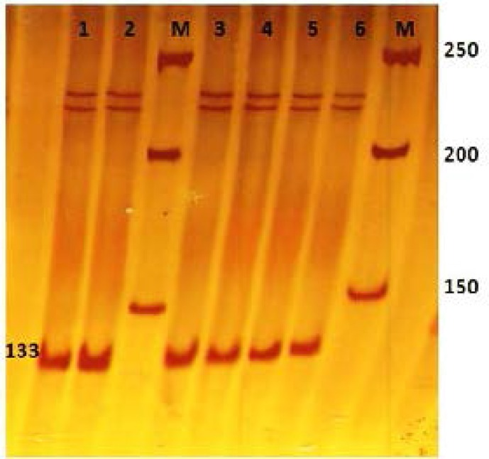 Polyacrylamide gel after applying SSCP technique for exon 24 PCR products. All single strand bands are in the same position and no polymorphism is detected. 50 bp DNA Marker (lane M), fertile samples (lane 1, 2), infertile samples (lane 3, 4, 5, 6
