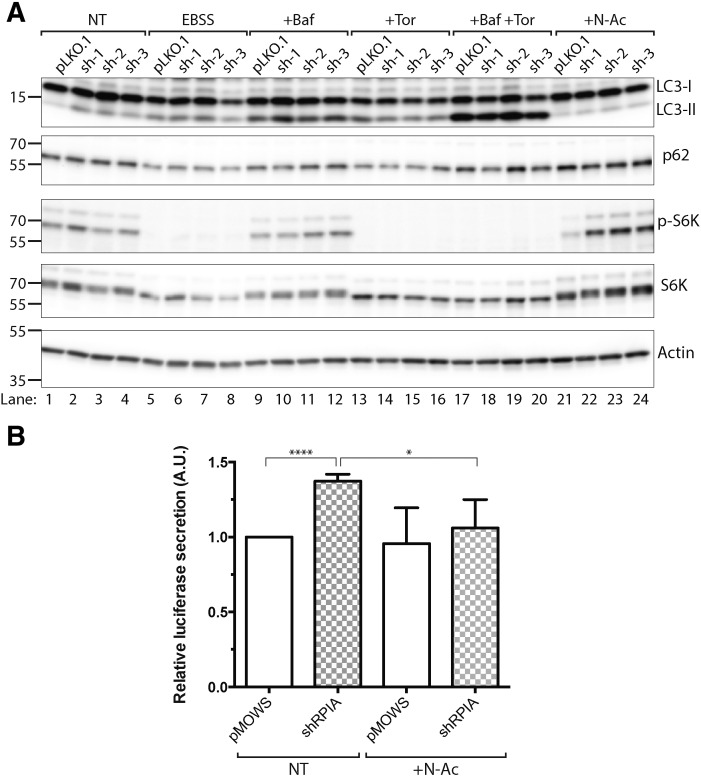 N -Acetyl cysteine reverts the effect of RPIA knockdown on LC3 processing. A) Immunoblot of LC3-processing and S6 Kinase signaling pathway in 293 cells transfected with pLKO.1 control and shRPIA (sh1–3) for 72 h, treated with EBSS, 10 nM bafilomycin A, 250 nM torin 1, 10 nM bafilomycin A + 250 nM torin1 and 1 mM N -acetyl cysteine for 3 h before harvesting. NT – not treated, EBSS - Earle's Balanced Salt Solution, Baf – bafilomycin, Tor – torin 1, and N-Ac – N -acetyl cysteine. B) Luciferase activity of supernatant collected 48 h post-transfection of control (pMOWS) and shRPIA, in 293 T cells expressing Act-LC3-dNGLuc. Cells were treated overnight with N -acetyl cysteine (10 mM). Data represent mean ± SD, n = 3.