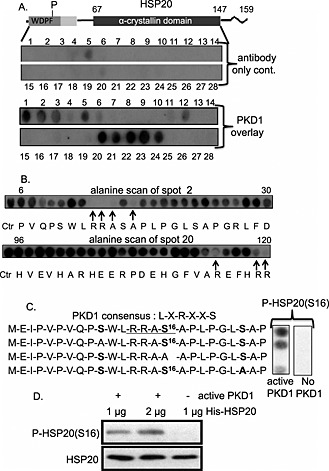 Identification of PKD1–HSP20 interaction and phosphorylation sites. (A) HSP20 is shown schematically with phosphorylation site (P), WDPF domain (dark shaded area), conserved region (light shaded area) and α‐crystallin domain (black area). Peptide array analysis identifies PKD1 binding sites on HSP20. (B) The key residues involved in the HSP20–PKD1 interaction are delineated using alanine scanning peptide arrays where each residue is sequentially substituted by alanine (or aspartate if residue is alanine). (C) In vitro phosphorylation assay on peptide array using [γ‐ 32 P‐ATP] revealed that HSP20 is phosphorylated at Ser16 by PKD1. (D) In vitro kinase assay (cold) using purified His‐HSP20 and PKD1 active protein further verified HSP20 phosphorylation by PKD1