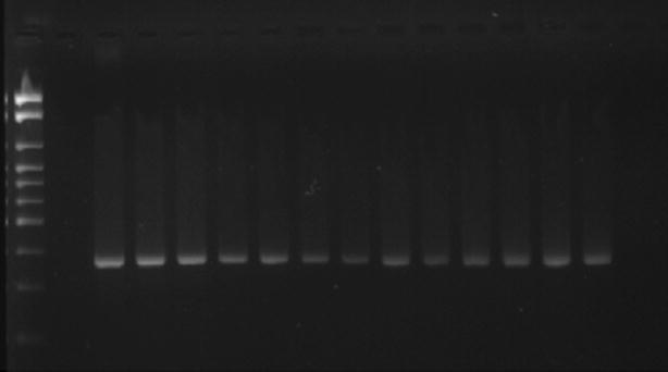 Agarose gel electrophoresis for detection of gad A (373 bp) in Escherichia coli (stained with SYBR ® Safe) showing the amplified products positive control, negative control and some samples studied. A 100-bp ladder was used as molecular size marker