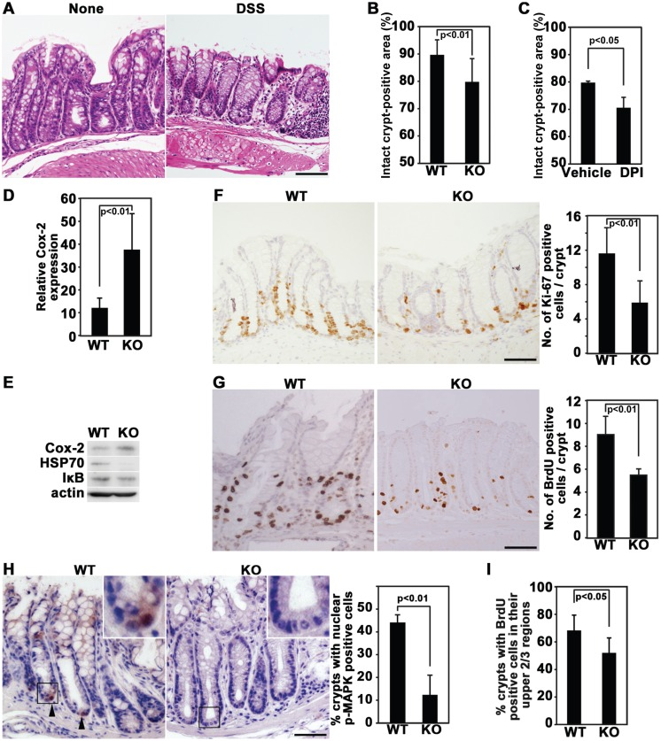 Inhibition of Nox1 suppresses recovery from DSS-induced colitis, which is accompanied by decreased growth and migration of colonic cells. (A) Representative pictures of colon tissues on day 9 in WT mice with and without administration of DSS, followed by recovery from colitis. Colon sections were stained with H E. The lengths of the analyzed colons were 6 cm and 4.5 cm for DSS-treated and DSS-untreated mice, respectively. (B and C) WT control and Nox1 -/Y mice were given DSS (B). Alternatively, WT mice were given DSS together with DPI or DMSO (C). Then, the animals were allowed to recover from colitis. Histological damage was quantified by estimating the percentage of intact crypts found within an entire section of the colon (4.5 to 6 cm length). Histograms represent mean ± SD values [n=12 for WT and Nox1 -/Y mice (B) and n=5 for DMSO and DPI-treated mice (C)]. (D) Immunohistochemical analysis of Cox-2 expression on day 9 in WT and Nox1 -/Y mice treated with DSS, followed by recovery from colitis in the colon. Histograms represent the percentages of Cox-2-positive cells found within 0.1 mm 2 sections of colons (mean ± SD, n=5 for WT and Nox1 -/Y mice). (E) Immunoblotting analysis of Cox-2, HSP70, and IκB expression in the colon. Colonic extracts were prepared from WT and Nox1 KO mice at 5 days after termination of DSS administration. β-actin was used as a loading control. (F) WT and Nox1 -/Y mice were treated with 2% DSS and allowed to recover from colitis. Colon sections were stained with anti-Ki-67 antibodies. Histograms represent the number of Ki-67-positive cells per crypt (mean ± SD, n=5 for WT and Nox1 -/Y mice). (G) WT and Nox1 -/Y mice were treated with DSS and allowed to recover from colitis. Colon sections were prepared following administration of BrdU 2 h prior to sacrifice and stained with anti-BrdU antibodies. Histograms represent the number of BrdU-positive cells per crypt (mean ± SD, n=5 for WT and Nox1 -/Y mice). (H) WT and Nox1 -/Y mice were treated