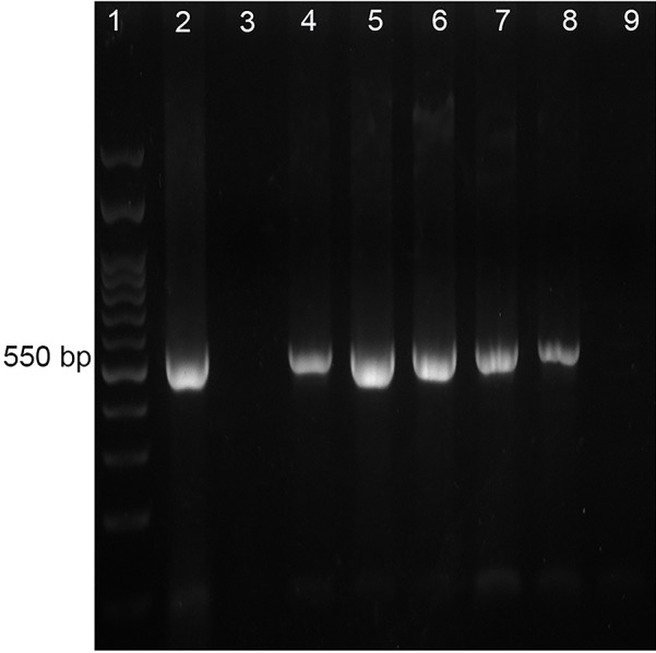 PCR detection of the LINE1-c- myc gene rearrangement of CTVT origin from cell-derived FNA samples. PCR products (550 bp) were resolved on a 1.5% (w/v) agarose gel. (Lane 1=100 bp DNA marker, Lane 2=positive control, Lane 3=negative control, Lanes 4–9 are samples from the vaginal mass (case 1), skin mass (case 2), nasal mass (case 7), nasal mass (case 8), nasal mass (case 11 in Table 2 ) and chronic inflammation tissue (case 9), respectively.)