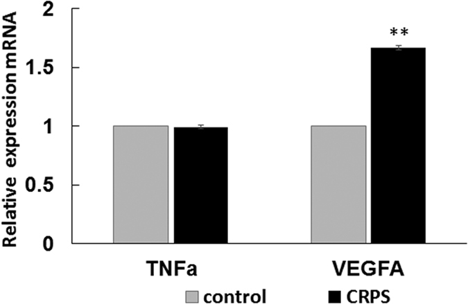 Relative expressions of VEGFA and TNFα mRNA in whole blood from CRPS patients and control individuals. Taqman analysis of target mRNAs of miR-939 that were consistently detectable in whole blood, showed a significant increase of VEGFA mRNA in patients with CRPS compared to control samples. TNFα mRNA levels were not significant between CRPS and control samples. GAPDH was used as the normalizer. Data represent mean ± SEM CRPS (n = 37) and control (n = 18). Statistical significance was calculated using Student t-test **p