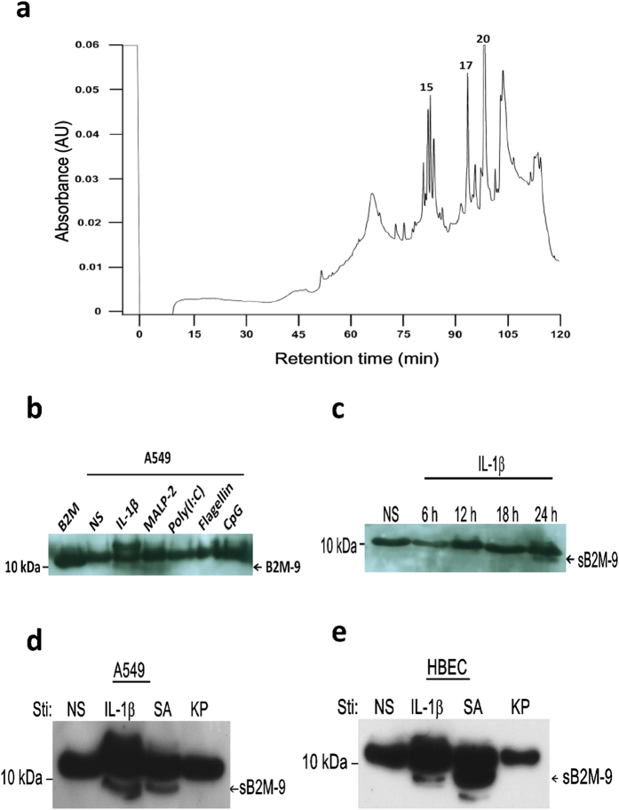 Separation and identification of sB2M-9 in the supernatant of REC upon IL-1β and bacterial stimulation. ( a ) 50 ml of IL-1β-stimulated A549 culture medium for 24 h was incubated with 200 μl of cationic exchange (CM) beads. After CM extraction, the fraction was separated by RP- C18 HPLC as described in Methods section and the elution was monitored at 214 nm. The peaks containing the equivalent masses as those determined by <t>CM10/SELDI-TOF</t> are marked. Peak 15, 17 and 20 correspond to mass 7854, 8910, and 8345, respectively. ( b ) FCS-free media were collected from 24 h culture of A549 in response to non-stimulation (NS), IL-1β (1 ng/ml), MALP-2 (60 ng/ml), P(I:C) (5 μg/ml), Flagellin (50 μg/ml) and CpG ODN (100 ng/ml). Western blotting of the cationic extracts of culture medium was performed by using anti-B2M polyclonal antibodies, where B2M as a control. ( c ) Time course of sB2M-9 production was determined in A549 upon IL-1β (1 ng/ml) stimulation as compared with non-stimulation (NS). The cationic extracts of culture medium were analyzed by western blotting. ( d , e ) sB2M-9 was detected in the secretion of ( d ) A549 and ( e ) HBEC upon IL-1β (1 ng/ml), SA (1.2 × 10 4 cfu/ml), and KP (1.2 × 10 4 cfu/ml) treatment.