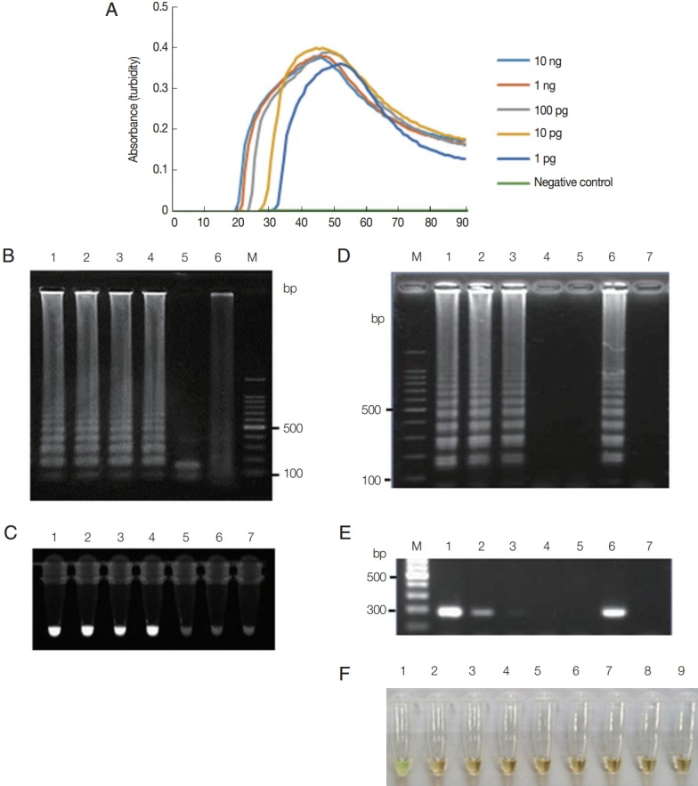 Functionality of T. vaginalis actin LAMP assays. (A) LAMP on 10-fold serial dilutions of T. vaginalis genomic DNA (10 ng to 1 pg per reaction) monitored by measuring absorbance. Distilled water was used as a negative control. (B) LAMP products were visualized by gel electrophoresis. Lane 1, 1 ng; lane 2, 100 pg; lane 3, 10 pg; lane 4, 1 pg of T. vaginalis genomic DNA; lane 5, LAMP product after Hind III digestion; lane 6, distilled water; lane M, 100-bp DNA marker. (C) LAMP products were visualized under UV light using the Loopamp fluorescent detection reagent. Lane 1, 1 ng; lane 2, 100 pg; lane 3, 10 pg; lane 4, 1 pg; lane 5, 100 fg; lane 6, 10 fg of T. vaginalis genomic DNA; lane 7, distilled water. (D-E) T. vaginalis at a density of 1×10 2 parasites/μl was serially diluted and tested using the LAMP assay (D) and PCR (E) with F3 and B3 primers (Table 1). Lane M, 100-bp DNA marker; lane 1, 100; lane 2, 10; lane 3, 1; lane 4, 0.1; lane 5, 0.01 parasite(s) per reaction; lane 6, positive control, 100 pg of plasmid DNA containing the LAMP targeting regions of actin gene; lane 7, distilled water. (F) Specificity of LAMP primers for detection of T. vaginalis assessed using template DNA from other microbial species. Lane 1, T. vaginalis ; lane 2, Candida albicans ; lane 3, Chlamydia trachomatis ; lane 4, Neisseria gonorrhoeae ; lane 5, Cryptosporidium parvum ; lane 6, Entamoeba histolytica ; lane 7, Giardia lamblia ; lane 8, Escherichia coli ; lane 9, human genomic DNA. LAMP products were visualized by a color change that was also observable by the naked eye under normal visible light.