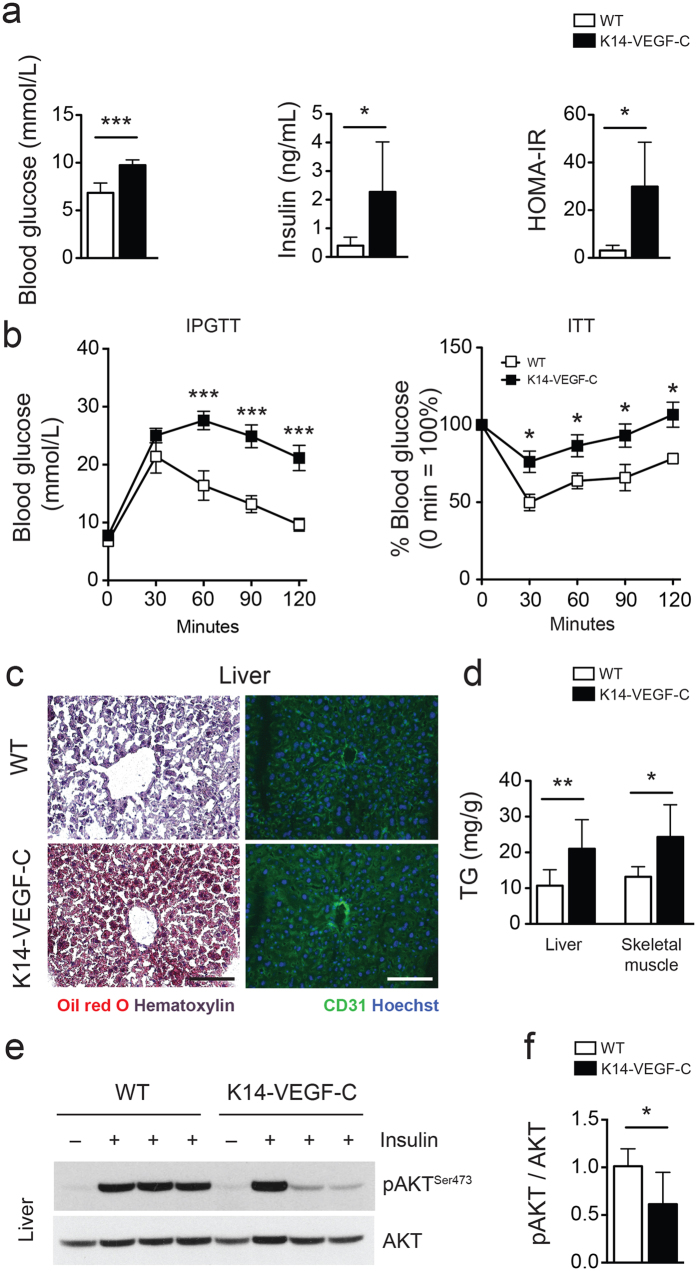 Reduced insulin sensitivity in K14-VEGF-C mice. ( a ) Elevated fasting blood glucose and insulin levels in K14-VEGF-C mice, leading to higher homeostatic model assessment of insulin resistance (HOMA-IR) indices. ( b ) Intraperitoneal glucose tolerance test ( n = 4–6 per group, mean ± SEM, *** p