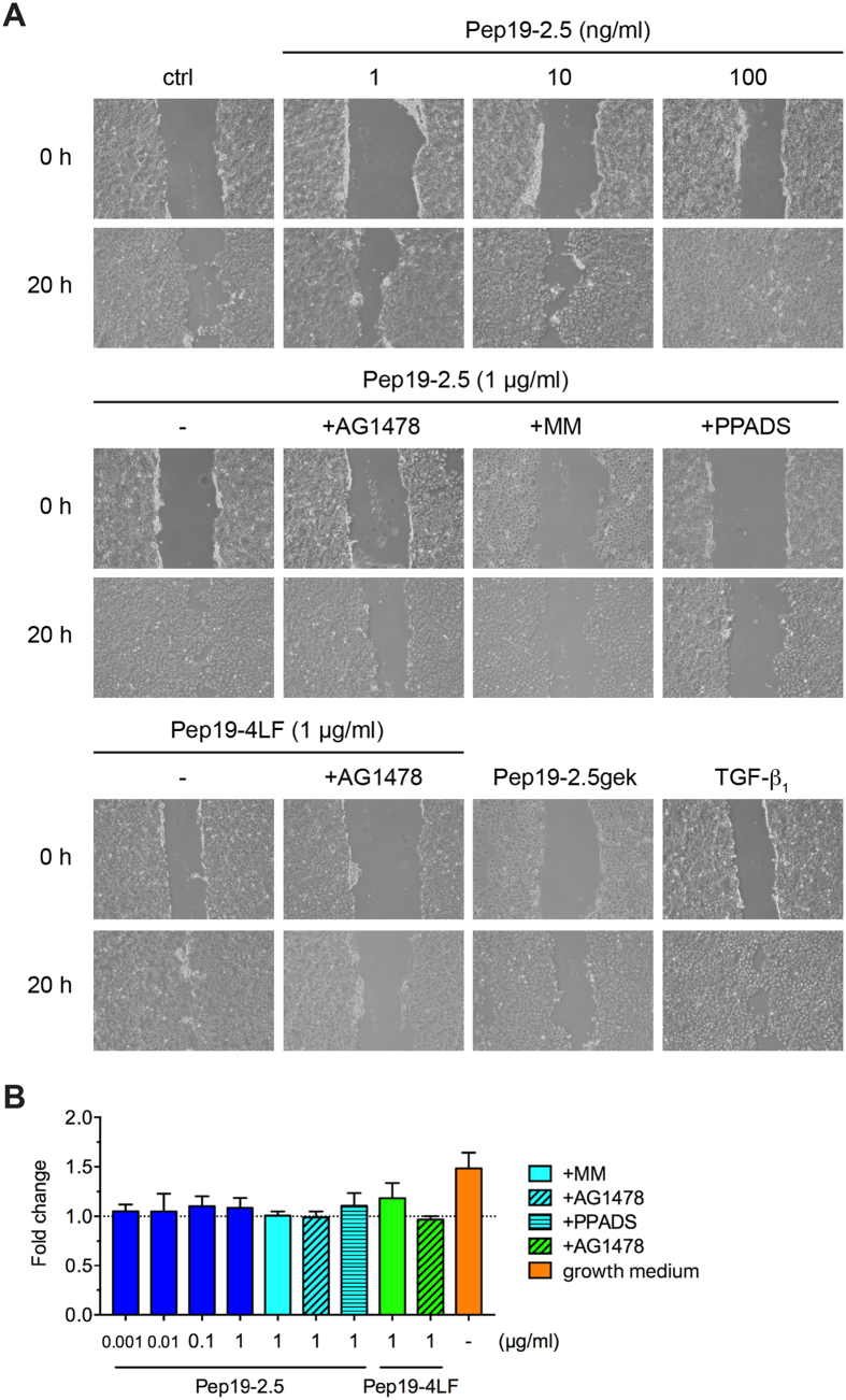 Peptide-induced keratinocyte migration depends on purinergic receptors and metalloproteases. ( A ) HaCaT cells were scratched and stimulated with Pep19-2.5 in the presence or absence of the inhibitors AG1478 (50 nM), marimastat (10 μM) and PPADS (50 μM). TGF-β 1 served as positive control. Images were taken directly after scratching (0 h) and after 20 h and are representative of three independent experiments. ( B ) HaCaT cells were stimulated with Pep19-2.5 and Pep19-4LF in the presence or absence of the inhibitors AG1478 (50 nM), marimastat (10 μM) and PPADS (50 μM). After 24 h EdU incorporation was quantified. Data are normalised to unstimulated cells (assigned as 1.0). Cells incubated with growth medium served as positive control. Data are mean + SD (n = 3).